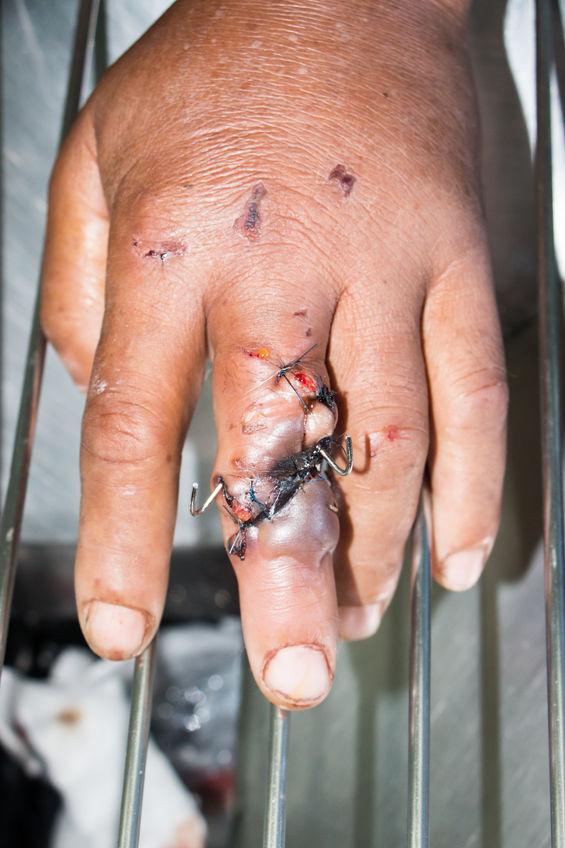 Hand Injuries at Work